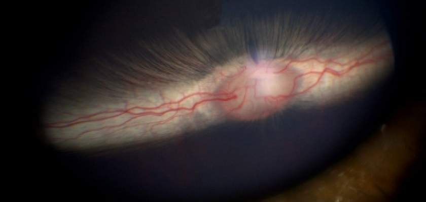 Rabbit fundus