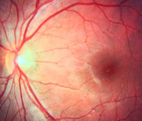 Ophthalmology clinical trials