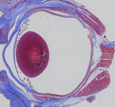 Ocular Inflammation Models